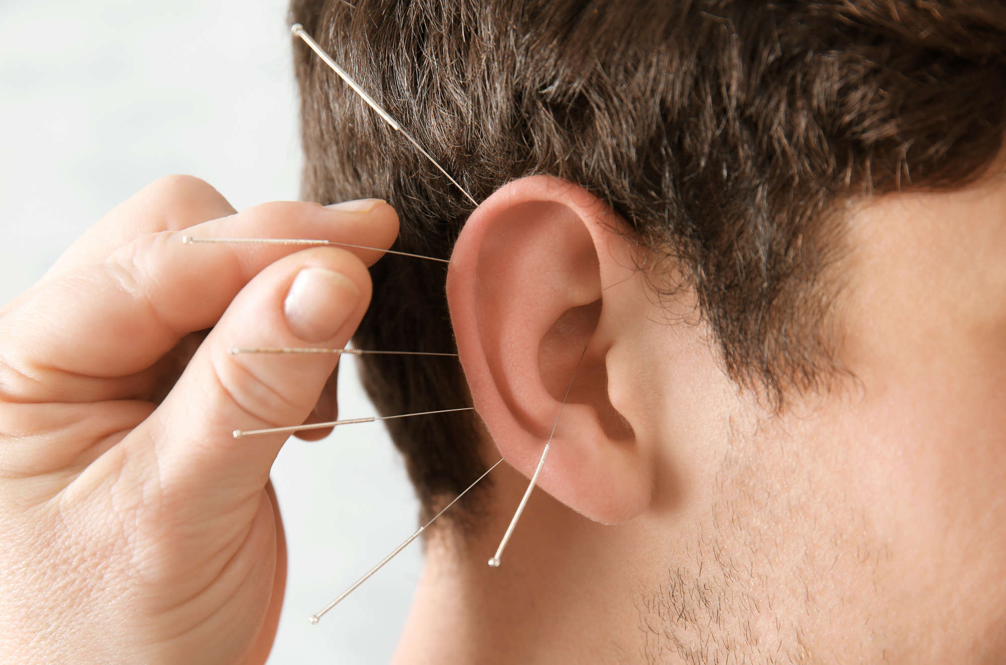 Raucherentwöhnung durch Akupunktur