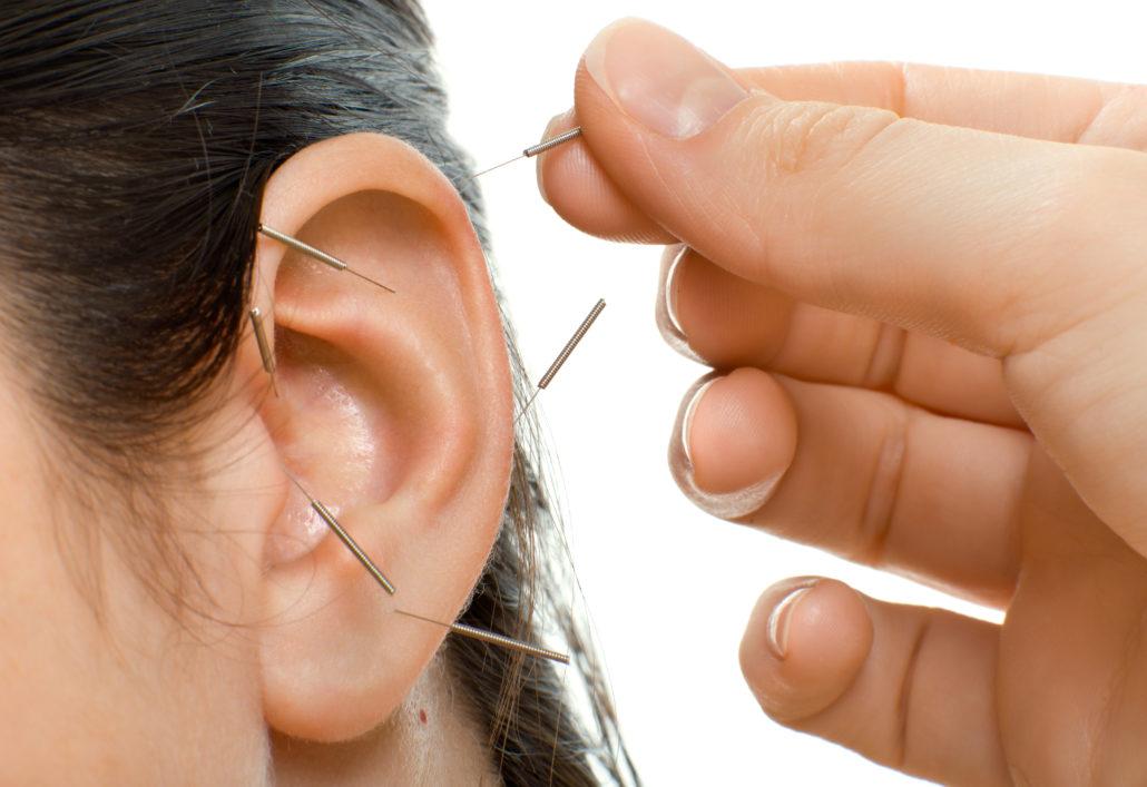 Ohr-Akupunktur 30 Minuten