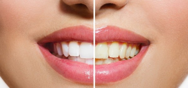 smileBASIC 20 Minuten Aufhellung