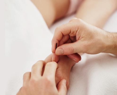 Akupunktur für Ihren Rücken in 5 Sitzungen
