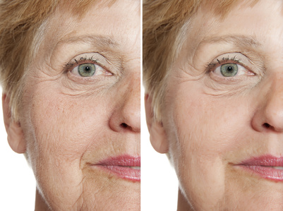 6-Punkte Facelifting mit 2ml Hyaluronsäure